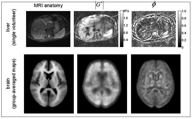3D_MRE_Liver_Brain