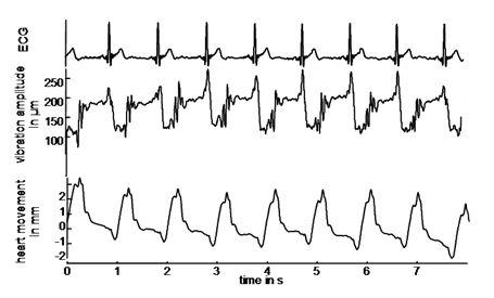 cardiacUSE